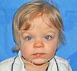 Front view after photo: metopic suture craniosynostosis case 33: Post-operation age 1 year