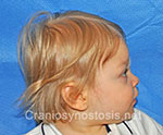 Side view after photo: metopic suture craniosynostosis case 33: Post-operation age 1 year
