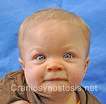 Front view after photo: metopic suture craniosynostosis case 33: Post-operation age 2 months