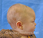Side view after photo: metopic suture craniosynostosis case 33: Post-operation age 2 months