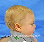 Side view after photo: metopic suture craniosynostosis case 33: Post-operation age 5 months