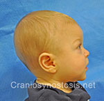 Side view before photo: metopic suture craniosynostosis case 33: Pre-operation age 6 weeks