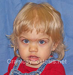 Front view after photo: metopic suture craniosynostosis case 37: Post-operation age 1 year