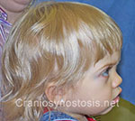 Side view before photo: metopic suture craniosynostosis case 37: Post-operation age 1 year