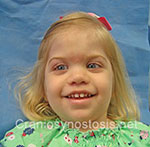 Front view after photo: metopic suture craniosynostosis case 37: Post-operation age 27 months