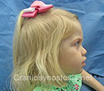 Side view before photo: metopic suture craniosynostosis case 37: Pre-operation age 27 months