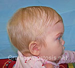 Side view before photo: metopic suture craniosynostosis case 37: Pre-operation age 2 months