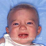 Front view after photo: metopic suture craniosynostosis case 38: Post-operation age 2 months