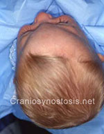 Side view before photo: metopic suture craniosynostosis case 38: Pre-operation age 4 months