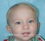 Front view after photo: metopic suture craniosynostosis case 38: Post-operation age 6.5 months