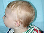 Side view before photo: metopic suture craniosynostosis case 38: Pre-operation age 6.5 months