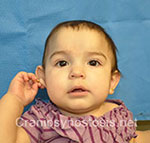 Front view after photo: metopic suture craniosynostosis case 5: Post-operation age 4 months