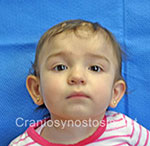 Front view after photo: metopic suture craniosynostosis case 5: Post-operation age 8 months