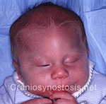 Front view before photo: metopic suture craniosynostosis case 6: Pre-operation age 1 week