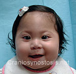 Front view before photo: metopic suture craniosynostosis case 9: Pre-operation age 6 weeks