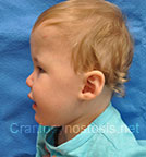 Side view before photo: multiple suture craniosynostosis case 1: Post-operation age 15 months