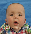 Front view after photo: multiple suture craniosynostosis case 1: Post-operation age 3 months