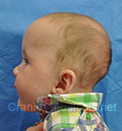 Side view before photo: multiple suture craniosynostosis case 1: Post-operation age 3 months