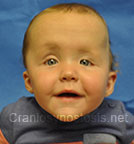 Front view after photo: multiple suture craniosynostosis case 1: Post-operation age 5 months