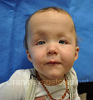 Front view after photo: multiple suture craniosynostosis case 1: Post-operation age 8 months