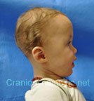 Side view before photo: multiple suture craniosynostosis case 1: Post-operation age 8 months
