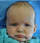Front view before photo: multiple suture craniosynostosis case 1: Pre-operation age 3 weeks
