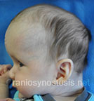 Side view before photo: multiple suture craniosynostosis case 1: Pre-operation age 3 weeks