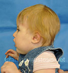 Side view before photo: multiple suture craniosynostosis case 2: Post-operation age 8 months