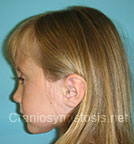 Side view before photo: multiple suture craniosynostosis case 4: Post-operation age 5 years