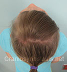 Top view after photo: multiple suture craniosynostosis case 4: Post-operation age 7 Years