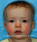 Front view after photo: sagittal suture craniosynostosis case 1: Post-operation age 7 months