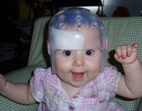 Lillie wearing her cranial helmet and smiling